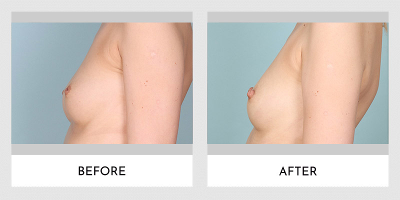 Inverted Nipple Before and After | Aesthetic MdR
